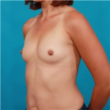 Breast Augmentation Before Photo by Michael Bogdan, MD, MBA, FACS; Southlake, TX - Case 33431