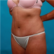 Tummy Tuck After Photo by Michael Bogdan, MD, MBA, FACS; Southlake, TX - Case 33432