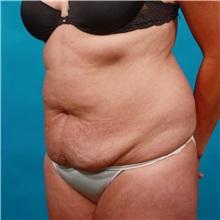 Tummy Tuck Before Photo by Michael Bogdan, MD, MBA, FACS; Southlake, TX - Case 33432