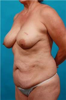 Tummy Tuck Before Photo by Michael Bogdan, MD, MBA, FACS; Southlake, TX - Case 33930