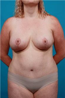 Tummy Tuck After Photo by Michael Bogdan, MD, MBA, FACS; Southlake, TX - Case 33932