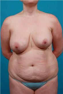 Tummy Tuck Before Photo by Michael Bogdan, MD, MBA, FACS; Southlake, TX - Case 33932