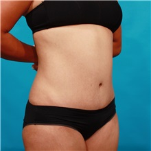 Tummy Tuck After Photo by Michael Bogdan, MD, MBA, FACS; Southlake, TX - Case 33933