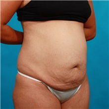 Tummy Tuck Before Photo by Michael Bogdan, MD, MBA, FACS; Southlake, TX - Case 33933