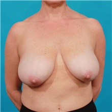 Breast Reduction Before Photo by Michael Bogdan, MD, MBA, FACS; Southlake, TX - Case 34111