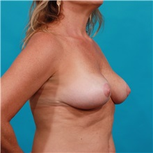 Breast Reduction After Photo by Michael Bogdan, MD, MBA, FACS; Southlake, TX - Case 34111