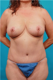 Tummy Tuck After Photo by Michael Bogdan, MD, MBA, FACS; Grapevine, TX - Case 34112