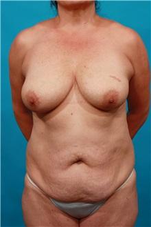 Tummy Tuck Before Photo by Michael Bogdan, MD, MBA, FACS; Grapevine, TX - Case 34112