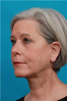 Facelift After Photo by Michael Bogdan, MD, MBA, FACS; Southlake, TX - Case 34113