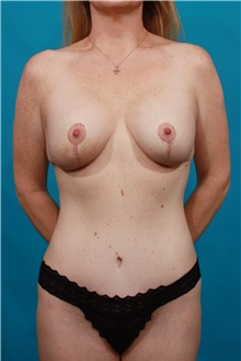 Tummy Tuck After Photo by Michael Bogdan, MD, MBA, FACS; Southlake, TX - Case 34120