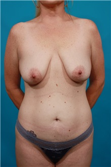 Tummy Tuck Before Photo by Michael Bogdan, MD, MBA, FACS; Southlake, TX - Case 34120