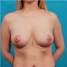 Breast Lift After Photo by Michael Bogdan, MD, MBA, FACS; Southlake, TX - Case 34122