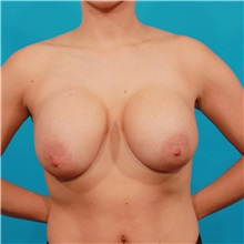 Breast Lift Before Photo by Michael Bogdan, MD, MBA, FACS; Southlake, TX - Case 34122
