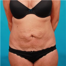 Tummy Tuck Before Photo by Michael Bogdan, MD, MBA, FACS; Southlake, TX - Case 34959