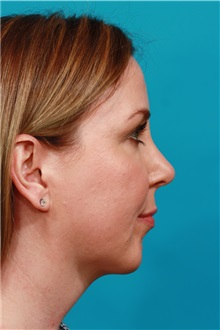 Chin Augmentation After Photo by Michael Bogdan, MD, MBA, FACS; Grapevine, TX - Case 36904