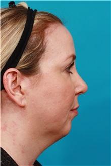 Chin Augmentation Before Photo by Michael Bogdan, MD, MBA, FACS; Grapevine, TX - Case 36904
