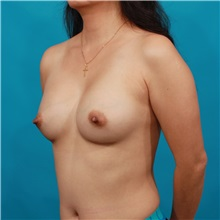 Breast Augmentation After Photo by Michael Bogdan, MD, MBA, FACS; Southlake, TX - Case 36973