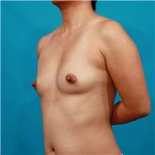 Breast Augmentation Before Photo by Michael Bogdan, MD, MBA, FACS; Southlake, TX - Case 36973