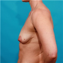 Breast Lift Before Photo by Michael Bogdan, MD, MBA, FACS; Grapevine, TX - Case 36981
