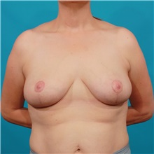 Breast Reduction After Photo by Michael Bogdan, MD, MBA, FACS; Southlake, TX - Case 36982