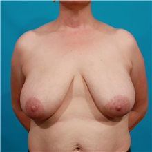 Breast Reduction Before Photo by Michael Bogdan, MD, MBA, FACS; Southlake, TX - Case 36982