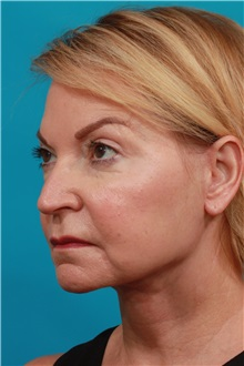 Facelift After Photo by Michael Bogdan, MD, MBA, FACS; Grapevine, TX - Case 37047