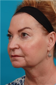Facelift Before Photo by Michael Bogdan, MD, MBA, FACS; Grapevine, TX - Case 37047