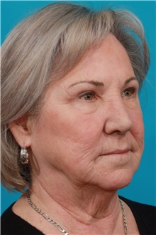 Eyelid Surgery After Photo by Michael Bogdan, MD, MBA, FACS; Grapevine, TX - Case 39187