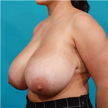 Breast Reduction Before Photo by Michael Bogdan, MD, MBA, FACS; Grapevine, TX - Case 39189