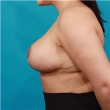 Breast Reduction After Photo by Michael Bogdan, MD, MBA, FACS; Grapevine, TX - Case 39189