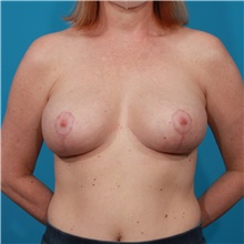Breast Implant Removal After Photo by Michael Bogdan, MD, MBA, FACS; Grapevine, TX - Case 44363