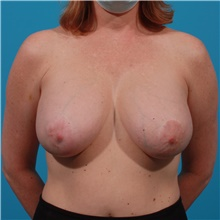 Breast Implant Removal Before Photo by Michael Bogdan, MD, MBA, FACS; Grapevine, TX - Case 44363