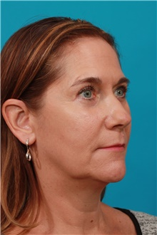 Eyelid Surgery After Photo by Michael Bogdan, MD, MBA, FACS; Grapevine, TX - Case 44378
