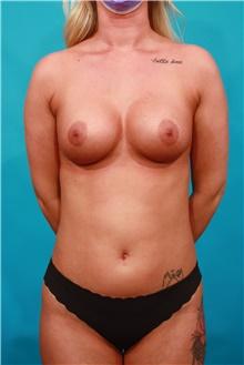 Liposuction Before Photo by Michael Bogdan, MD, MBA, FACS; Grapevine, TX - Case 44433