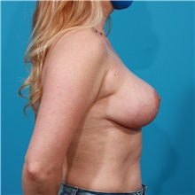 Breast Lift After Photo by Michael Bogdan, MD, MBA, FACS; Grapevine, TX - Case 44453