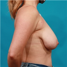 Breast Lift Before Photo by Michael Bogdan, MD, MBA, FACS; Grapevine, TX - Case 44453