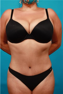 Tummy Tuck After Photo by Michael Bogdan, MD, MBA, FACS; Grapevine, TX - Case 44461