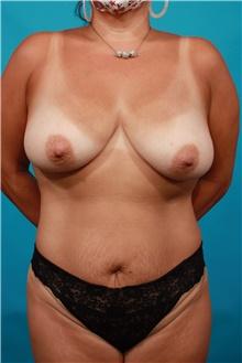 Tummy Tuck Before Photo by Michael Bogdan, MD, MBA, FACS; Grapevine, TX - Case 44461
