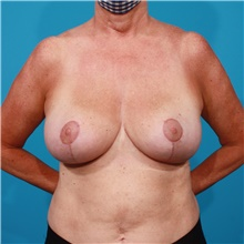 Breast Reduction After Photo by Michael Bogdan, MD, MBA, FACS; Grapevine, TX - Case 44463