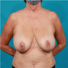 Breast Reduction Before Photo by Michael Bogdan, MD, MBA, FACS; Grapevine, TX - Case 44463