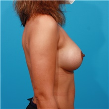 Breast Augmentation After Photo by Michael Bogdan, MD, MBA, FACS; Grapevine, TX - Case 44464