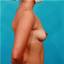 Breast Augmentation Before Photo by Michael Bogdan, MD, MBA, FACS; Grapevine, TX - Case 44464