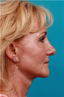 Facelift After Photo by Michael Bogdan, MD, MBA, FACS; Grapevine, TX - Case 44466