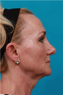 Facelift Before Photo by Michael Bogdan, MD, MBA, FACS; Grapevine, TX - Case 44466