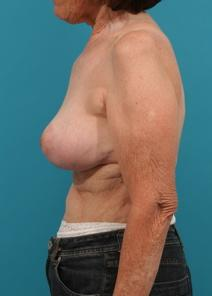 Breast Lift After Photo by Michael Bogdan, MD, MBA, FACS; Southlake, TX - Case 7772