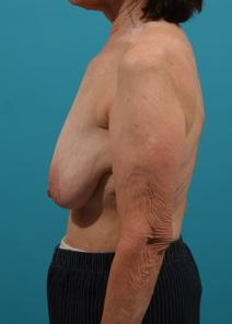 Breast Lift Before Photo by Michael Bogdan, MD, MBA, FACS; Southlake, TX - Case 7772