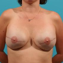Breast Reconstruction Picture