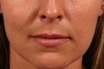 Dermal Fillers After Photo by Michael Bogdan, MD, MBA, FACS; Southlake, TX - Case 8029