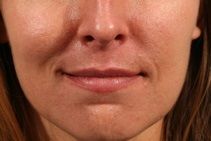 Dermal Fillers Before Photo by Michael Bogdan, MD, MBA, FACS; Southlake, TX - Case 8029