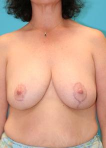 Breast Reduction After Photo by Michael Bogdan, MD, FACS; Southlake, TX - Case 8033